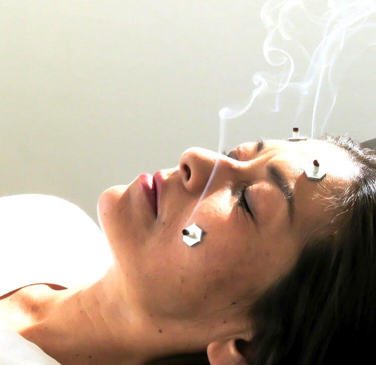 鍼灸・お灸で血行を改善する女性