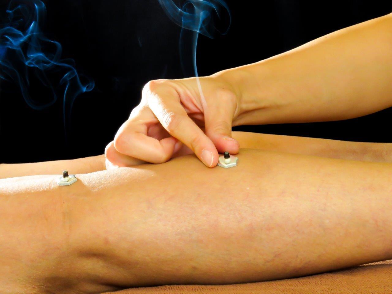 浜松 たいかん鍼灸治療院 冷え性改善 お灸施術