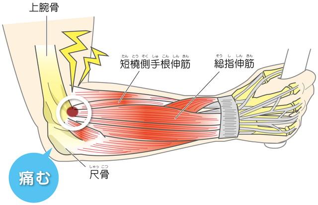 上腕骨外側上顆炎 テニス肘