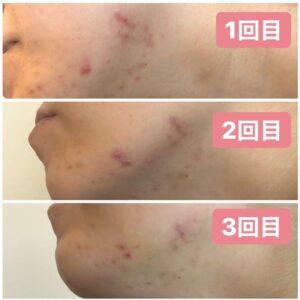 浜松たいかん鍼灸治療院 美容鍼灸画像